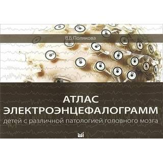 Атлас электроэнцефалограмм детей с различной патологией головного мозга Полякова 2018 г. (МЕДпресс)
