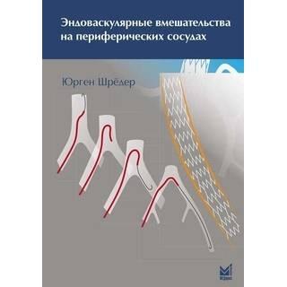 Эндоваскулярные вмешательства на периферических сосудах Шрёдер Ю. 2014 г. (МЕДпресс)