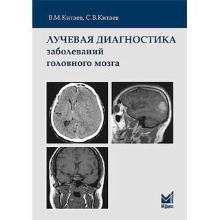Лучевая диагностика заболеваний головного мозга Китаев В.М. С.В.Китаев 2018 г. (МЕДпресс)