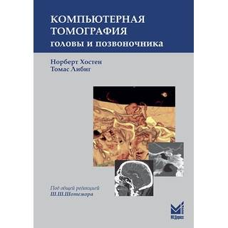 Компьютерная томография головы и позвоночника Хостен Н. Либиг Т. 2017 г. (МЕДпресс)