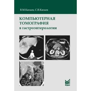 Компьютерная томография в гастроэнтерологии Китаев В.М. 2019 г. (МЕДпресс)