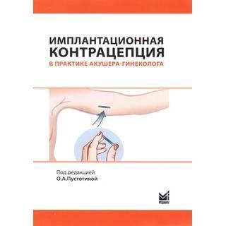 Имплантационная контрацепция в практике акушера-гинеколога Пустотина О.А. 2017 г. (МЕДпресс)