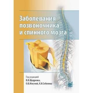Заболевания позвоночника и спинного мозга. Щедренок 2018 г. (МЕДпресс)