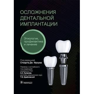 Осложнения дентальной имплантации. Этиология, профилактика и лечение Стюарт Дж. Фроум 2021 г. (Гэотар)